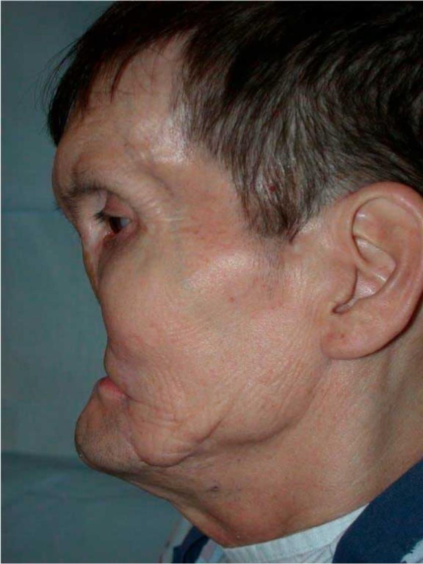 První pacient Jim Maki před operací; Foto archiv B. P.